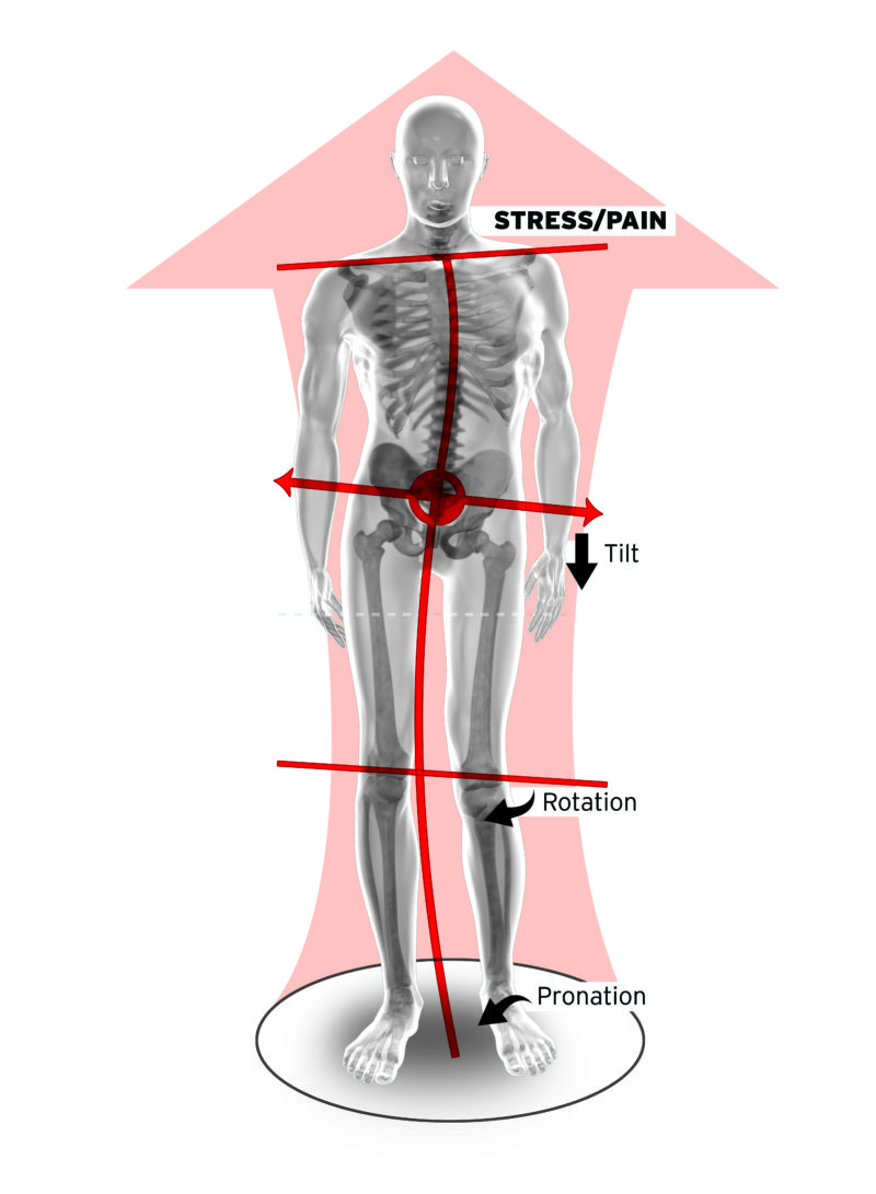 Foot Levelers Orthotics 3